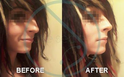 NoseSecret Antes y Despues Photo